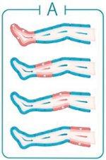 Sequenza massaggio-recupero-profondo della pressoterapia Mesis PressoSport per il recupero muscolare efficace
