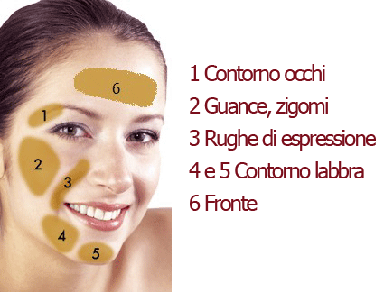 Radiofrequenza Mesis Rf Beauty per trattare le zone specifiche del viso
